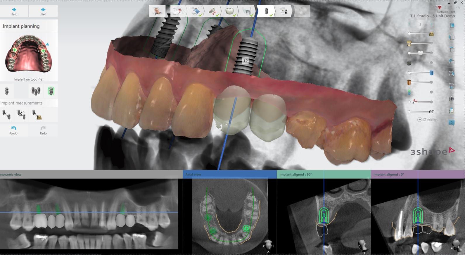 nawigacja w implantologii